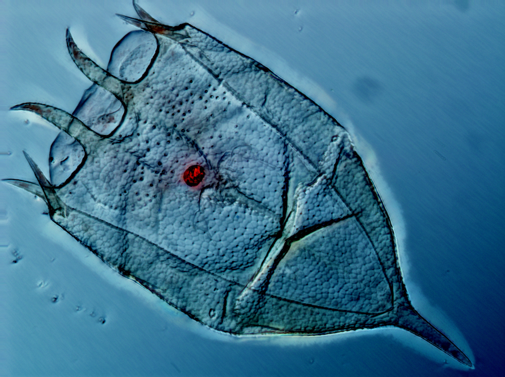 A microscopic image of a multicellular animal called a Rotifer. It is shaped like a bell with a long point at the top of the bell and small fringe on the mouth of the bell. This Rotifer has the fringe pointed diagonally top, left. There is a red circle in the center of the rotifer that serves as an eyespot.